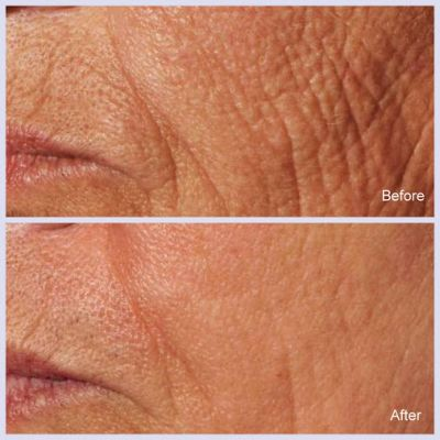 Radiant Images Laser Clinic San Ramon California